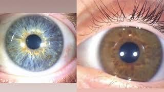 Mother, Father, & Son Iridology Case Study