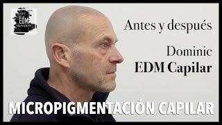 Antes y después de la micropigmentación capilar de Dominic en EDM Capilar (Marbella)