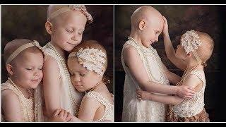 3 girls battling cancer pose for a photo Their update will leave you in tears