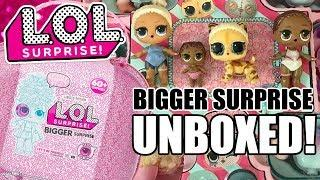 LOL BIGGER SURPRISE UNBOXED! | L.O.L. Surprise Bigger Surprise Opening + Unboxing Photos | OMG WIGS!