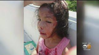 5-Year-Old Girl Who Was Attacked With Glass Bottle Is Recovering At Home