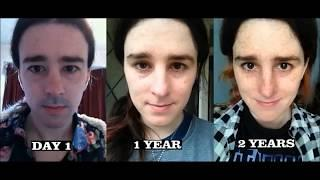 Trans woman 2 year HRT Timelapse