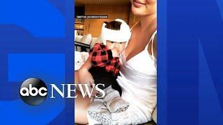 Chrissy Teigen responds to backlash over photo of her baby in a helmet