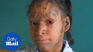 Teenager is known as 'Snake Girl' due to rare skin condition - Daily Mail