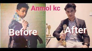 1 -25 Anmol Kc Before and After // Some old and new Photo collection/2018/2075