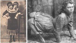 10 Freak Show Photos That Are 100% Real
